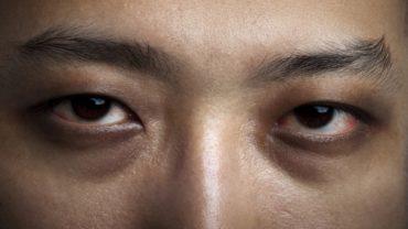 Insomnia Eyes
